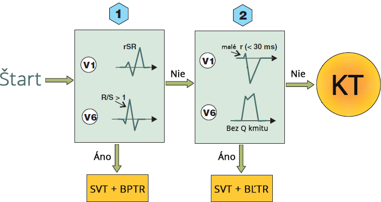 Griffith (Bundle Branch Block) algorithm, SVT with RBBB morphology, SVT with LBBB morphology, ventricular tachycardia