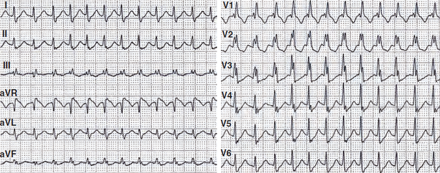 ECG wide QRS complex tachycardia (SVT with RBBB), SVT with RBBB - YES, Griffith (Bundle Branch Block) algorithm