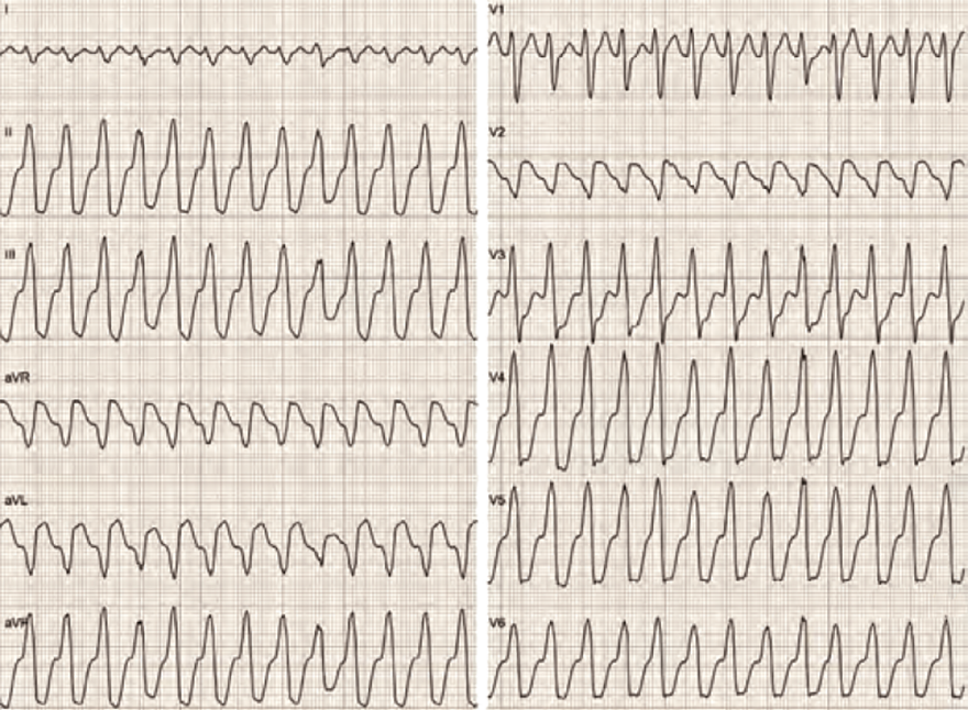ECG wide QRS complex tachycardia (ventricular tachycardia), SVT with RBBB - NO, SVT with LBBB - NO, Griffith (Bundle Branch Block) algorithm