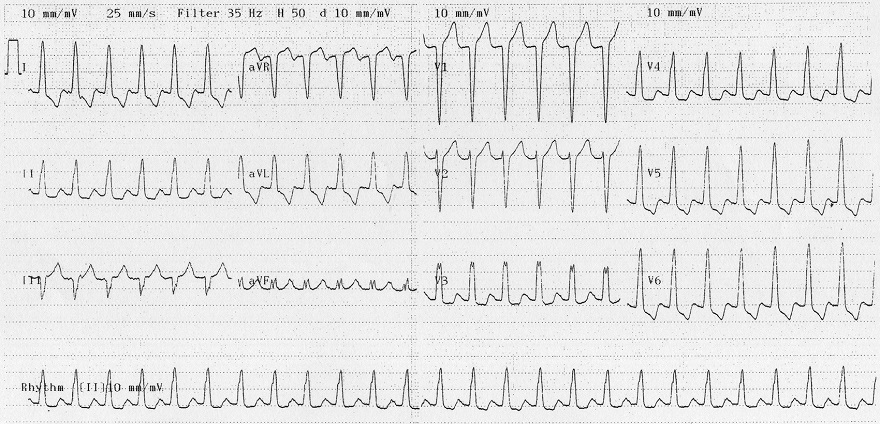 Griffith (Bundle Branch Block) algorithm, ECG differential diagnosis (DDx) broad complex tachycardia, SVT with LBBB morphology