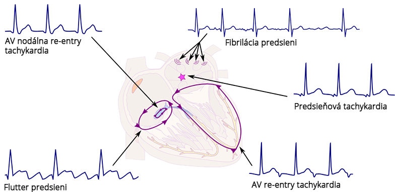 narrow QRS supraventricular arrhythmias and origin, AV notal re-entry tachycardia, Atrial fibrillation (multiple atrial wavelets), Atrial flutter, Atrial tachycardia (single focal), orthodromic AV re-entry tachycardia