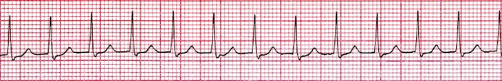 ECG Atrioventricular Nodal Reentry Tachycardia (AVNRT), re-entry of AV junction, supraventricular tachycardia (SVT) arrhythmia