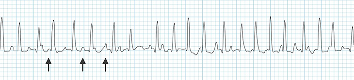 ECG Multifocal (Multiform) atrial tachycardia (MAT), enhanced normal automaticity, supraventricular tachycardia (SVT) arrhythmia