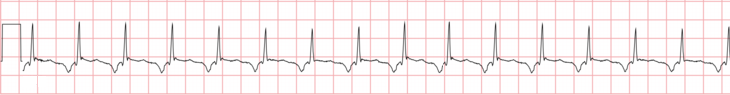 ECG Permanent (Persistent) junction reciprocating tachycardia, slow and decremental retrograde conduction