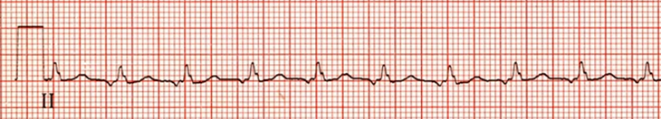 ECG ectopic atrial tachycardia, enhanced normal automaticity, supraventricular tachycardia (SVT) arrhythmia