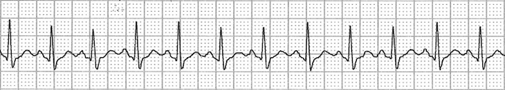 ECG Inappropriate Sinus Tachycardia (IST), enhanced normal automaticity, supraventricular tachycardia (SVT) arrhythmia