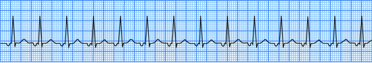 ECG Junctional tachycardia, enhanced normal automaticity of AV junction, supraventricular tachycardia (SVT) arrhythmia