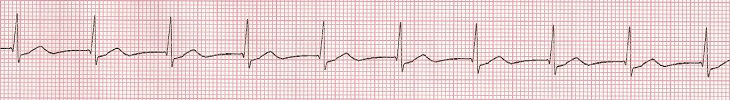ECG Nonparoxysmal junctional tachycardia, Accelerated Junctional Rhythm, enhanced normal automaticity of AV junction, supraventricular tachycardia (SVT) arrhythmia