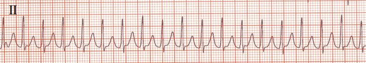 ECG Orthodromic Atrioventricular Reentrant Tachycardia (AVRT) , WPW syndrome, bundle of Kent