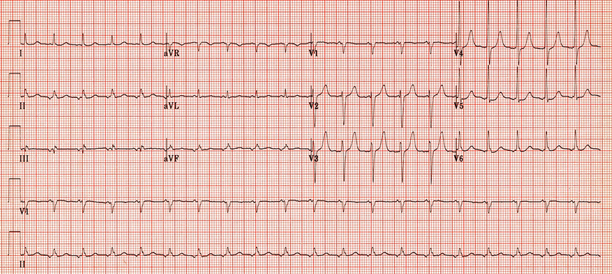 ECG atrial reentry tachycardia, abnormal P waves