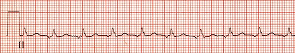 ECG focal atrial tachycardia, enhanced automaticity, abnormal P wave