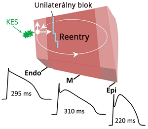 Phase 2 reentry mechanism, Functional Reentry