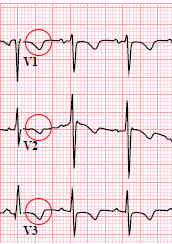 ECG (V1-V3) persistent juvenile T wave pattern (PJTWP), inverted T wave