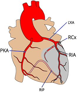 Heart snesosis: Circumflex branch of left coronary artery (LCx), Anterior interventricular branch of left coronary artery (LAD)