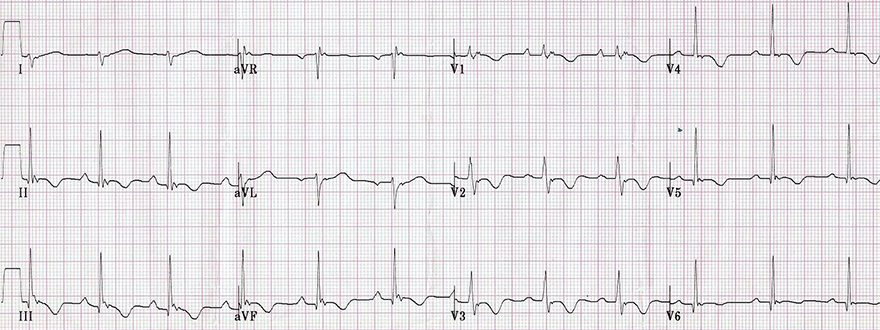 ECG (V1-V3) arrhythmogenic right ventricular hypertrophy, epsilon wave, inverted T wave
