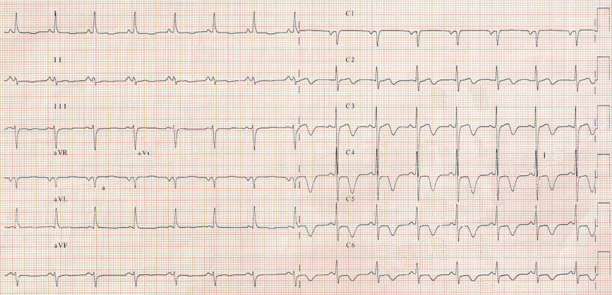 ECG ischemic inverted T waves, unstable angina pectoris, stenosis LAD, LCx