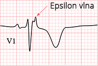 ECG epsilon wave, inverted T wave