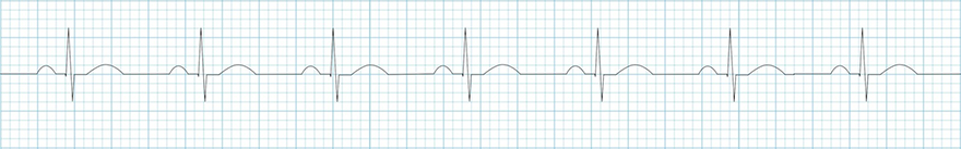ECG normal sinus rhythm with normal ventricular conductin, normal P waves, narrow QRS complexes