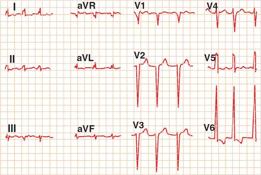 ECG triad of congestive heart failure: Low QRS voltage (limb leads), High QRS volate (precordial leads), Poor R wave progression